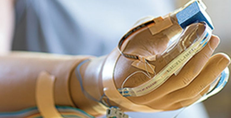 New Prosthetic Hand Lets the User Feel What They've Been Missing