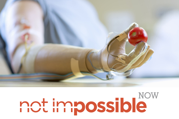 A Hand Instead of a Tool: New Prosthetics Offer Increased Touch-Sensitivity